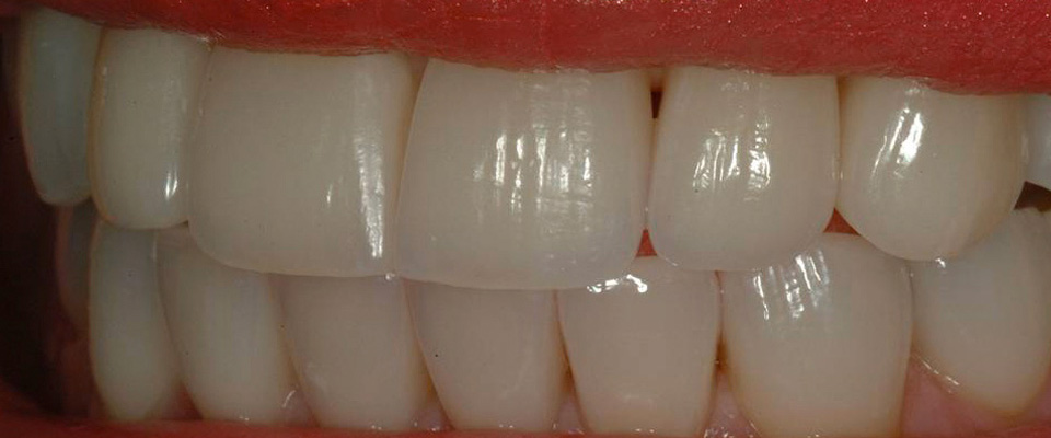 Case-crowns-2-after2-960x400