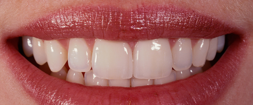 Case-veneers-2-after-960x400