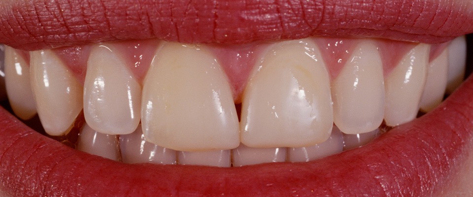 Case-veneers-2-before-960x400
