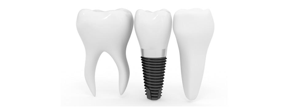 Header-Implant-960x300