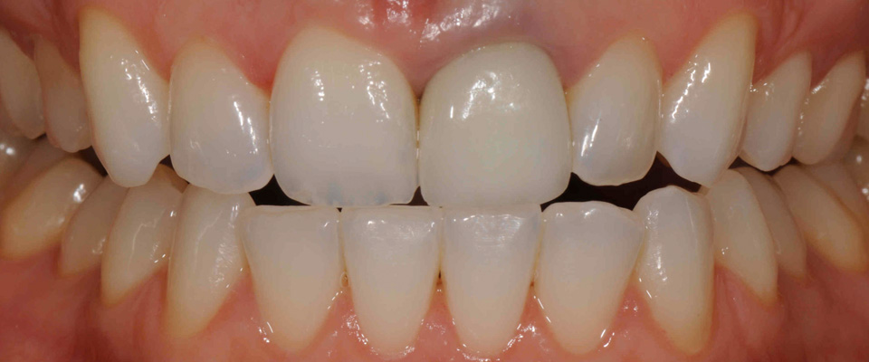 Case-crowns-1-before-960x400