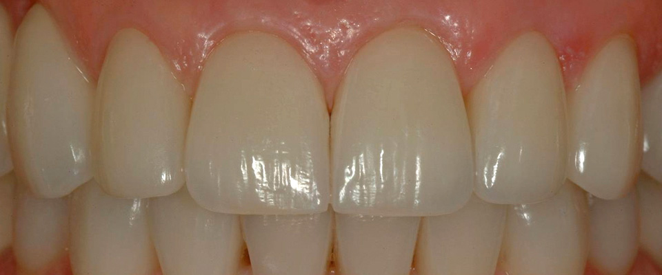 Case-crowns-2-after-960x400