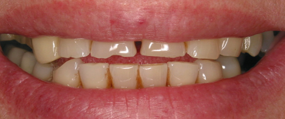 Case-crowns-2-before-960x400