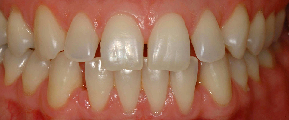 Case-veneers-1-before-960x400