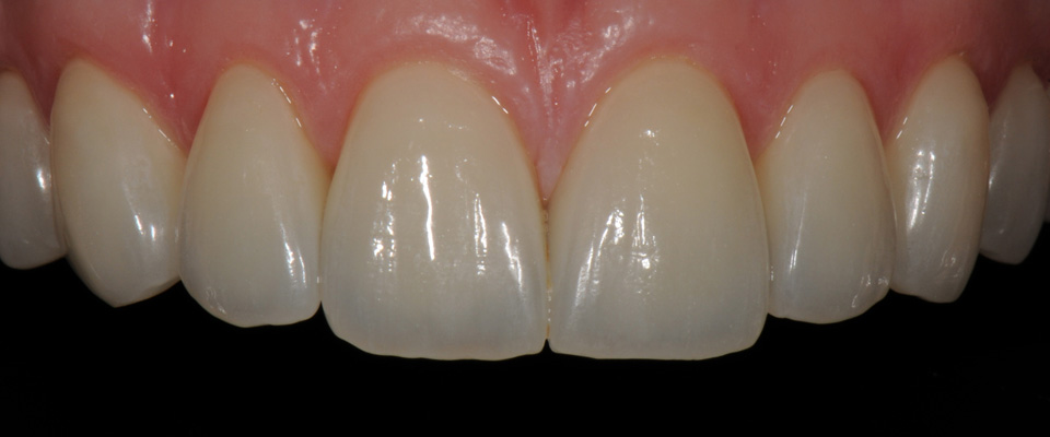 Case-veneers-3-after-960x400