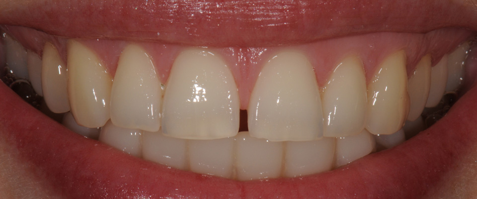 Case-veneers-3-before-960x400