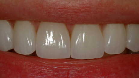 http://www.wsod.com.au/wp-content/uploads/2013/08/Case-Veneers-A-after-3-462x260.jpg