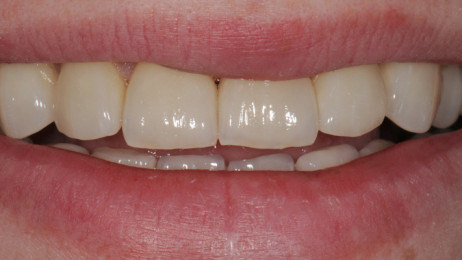 http://www.wsod.com.au/wp-content/uploads/2013/08/Case-Veneers-C-after-1-462x260.jpg