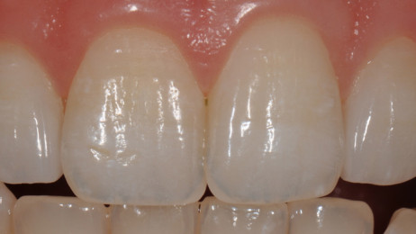 http://www.wsod.com.au/wp-content/uploads/2013/08/Case-Veneers-D-after-1-462x260.jpg