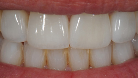 http://www.wsod.com.au/wp-content/uploads/2013/08/Case-Veneers-E-after-2-462x260.jpg