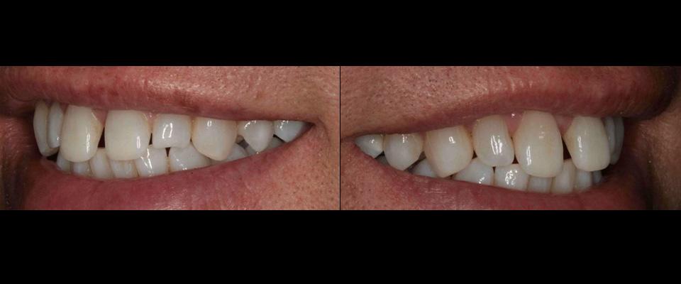 4 Porcelain Veneers on Upper Front Teeth