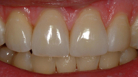 http://www.wsod.com.au/wp-content/uploads/2013/08/Case-Veneers-F-after-1-462x260.jpg