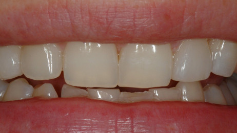 http://www.wsod.com.au/wp-content/uploads/2013/08/Case-Veneers-G-after-1-462x260.jpg