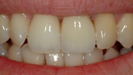 https://www.wsod.com.au/wp-content/uploads/2013/05/Case-implants-1-after-960x400-462x260.jpg